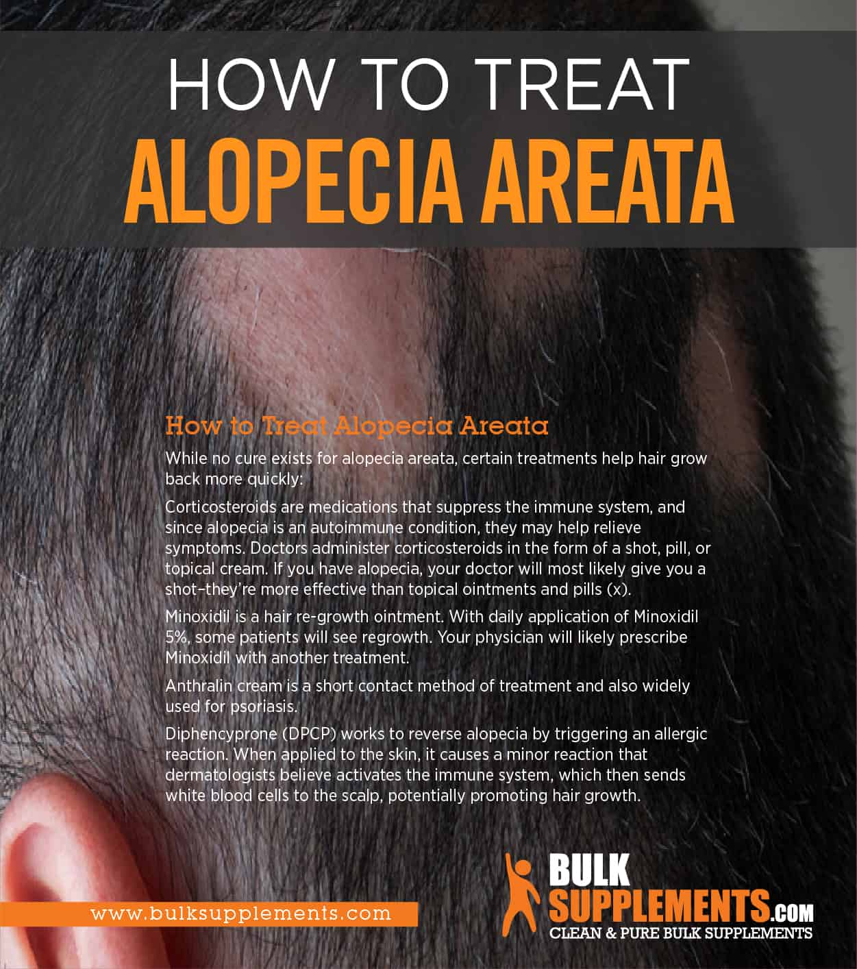 how to treat alopecia areata