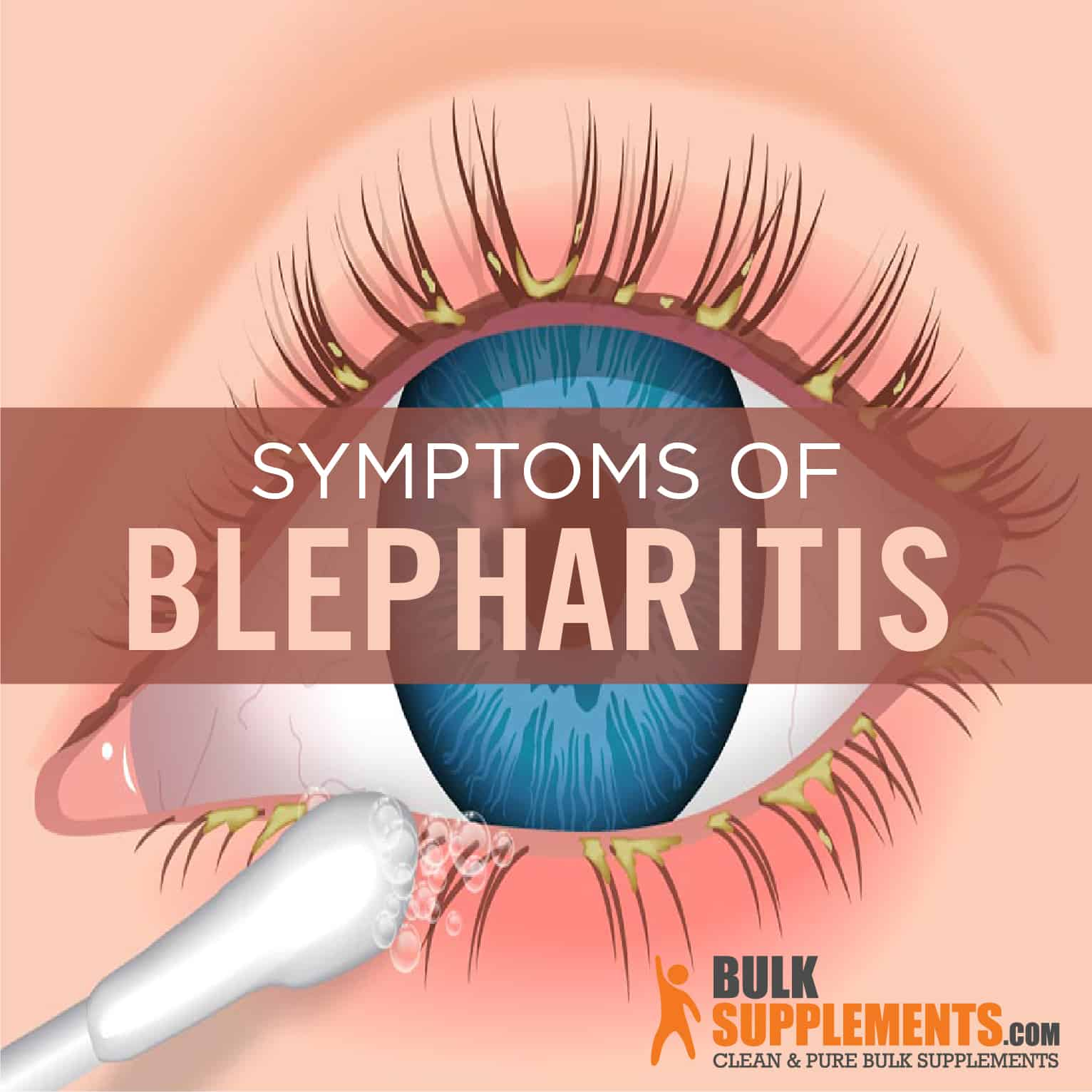 can a paleo diet help with blepharitis