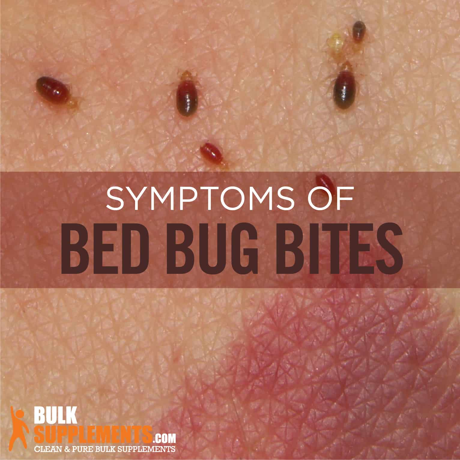 Bed Bug Bites What Heals Bed Bug Bites Qawalangintribe Com