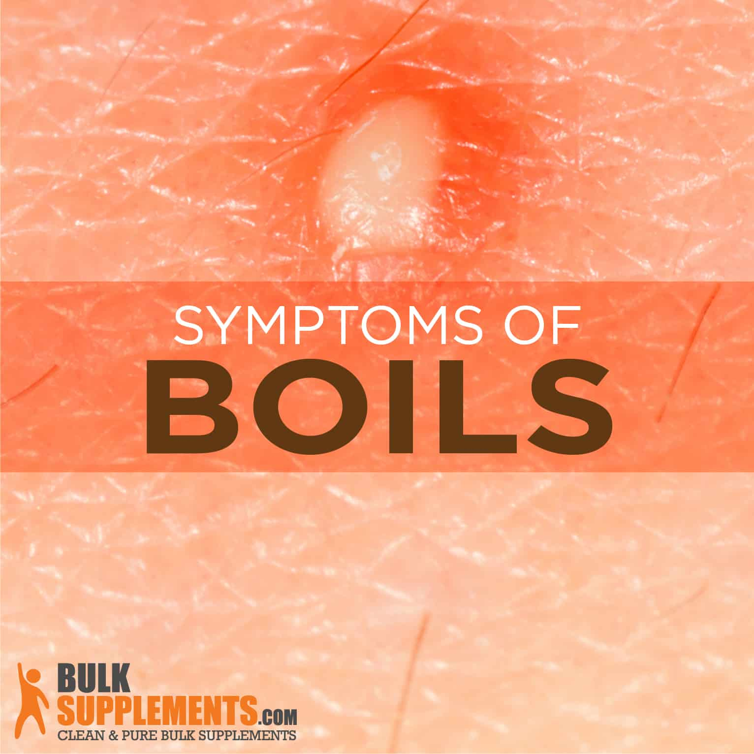 Boils: Symptoms, Causes and Treatment | BulkSupplements com