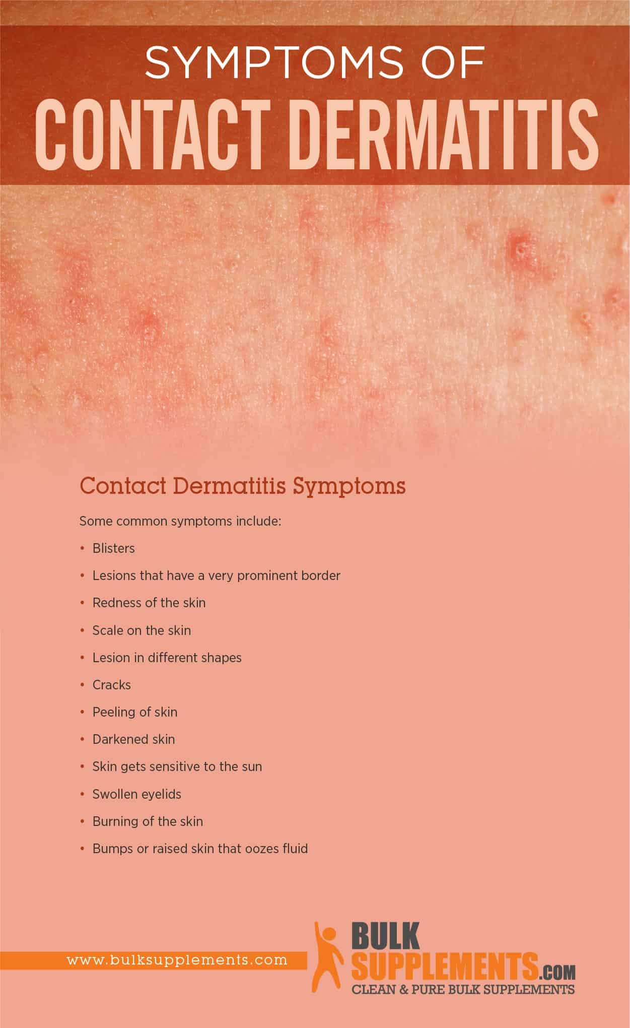 Contact Dermatitis Symptoms
