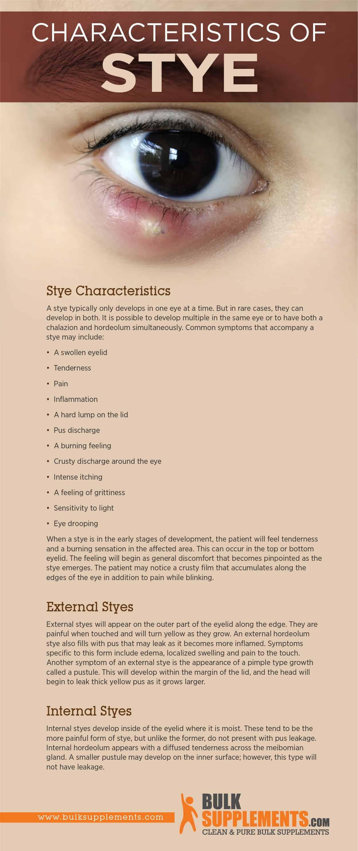 Stye Characteristics