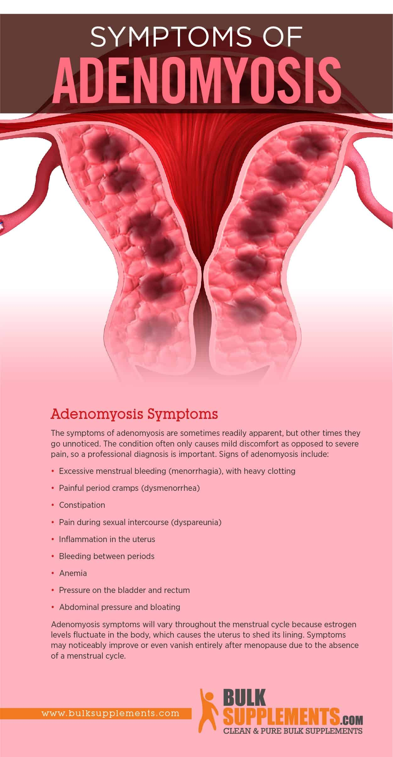 Adenomyosis Symptoms