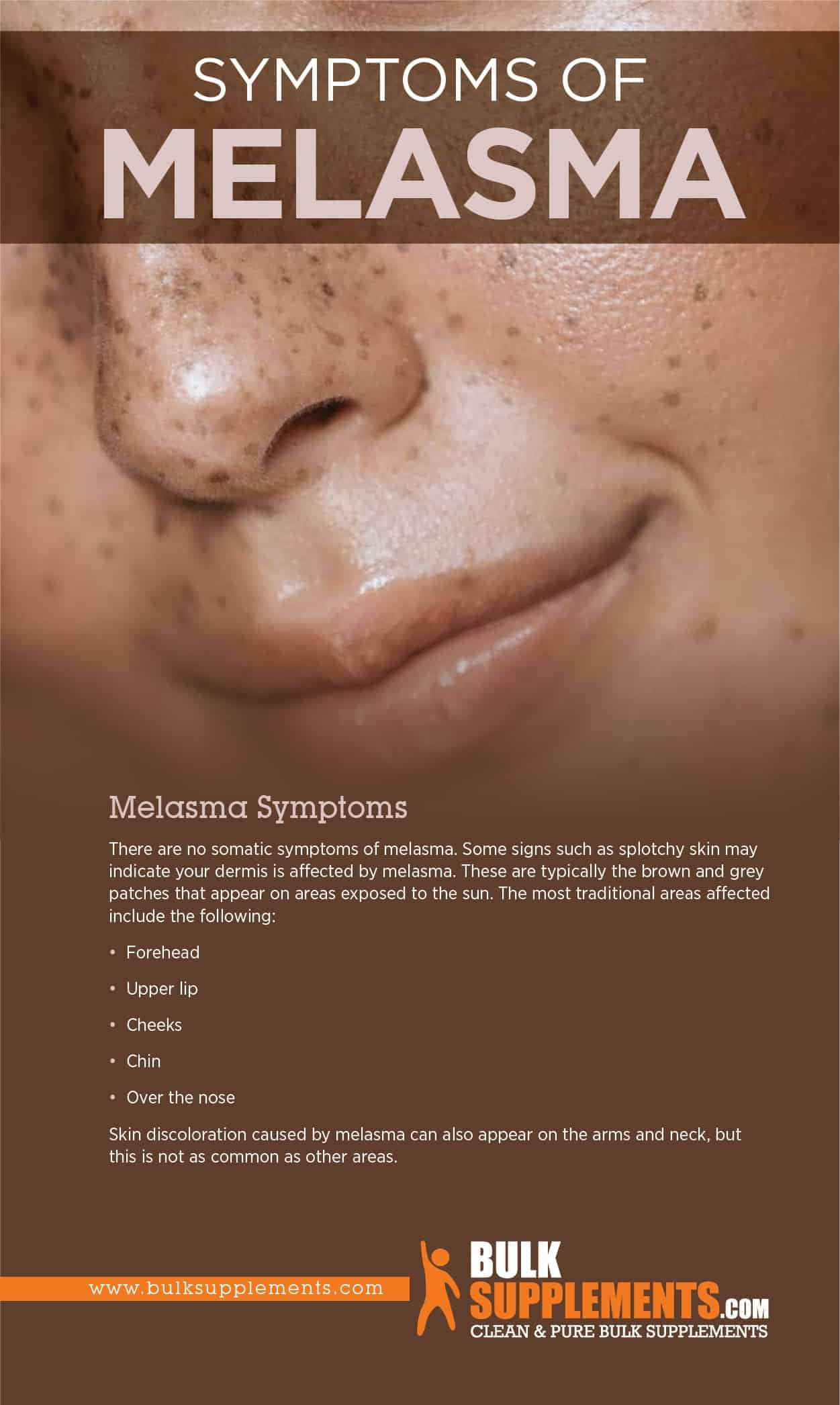 Melasma Symptoms