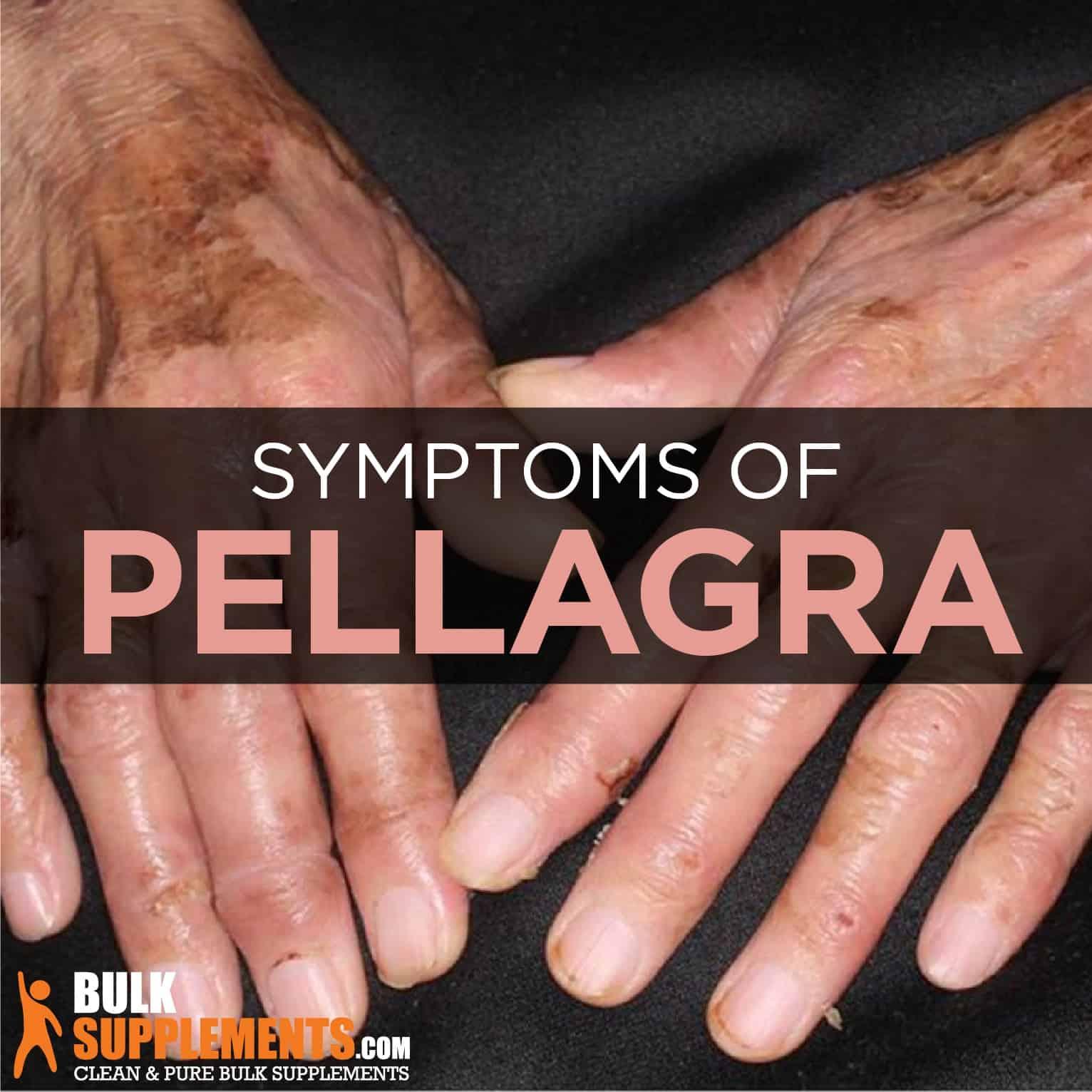 Pellagra