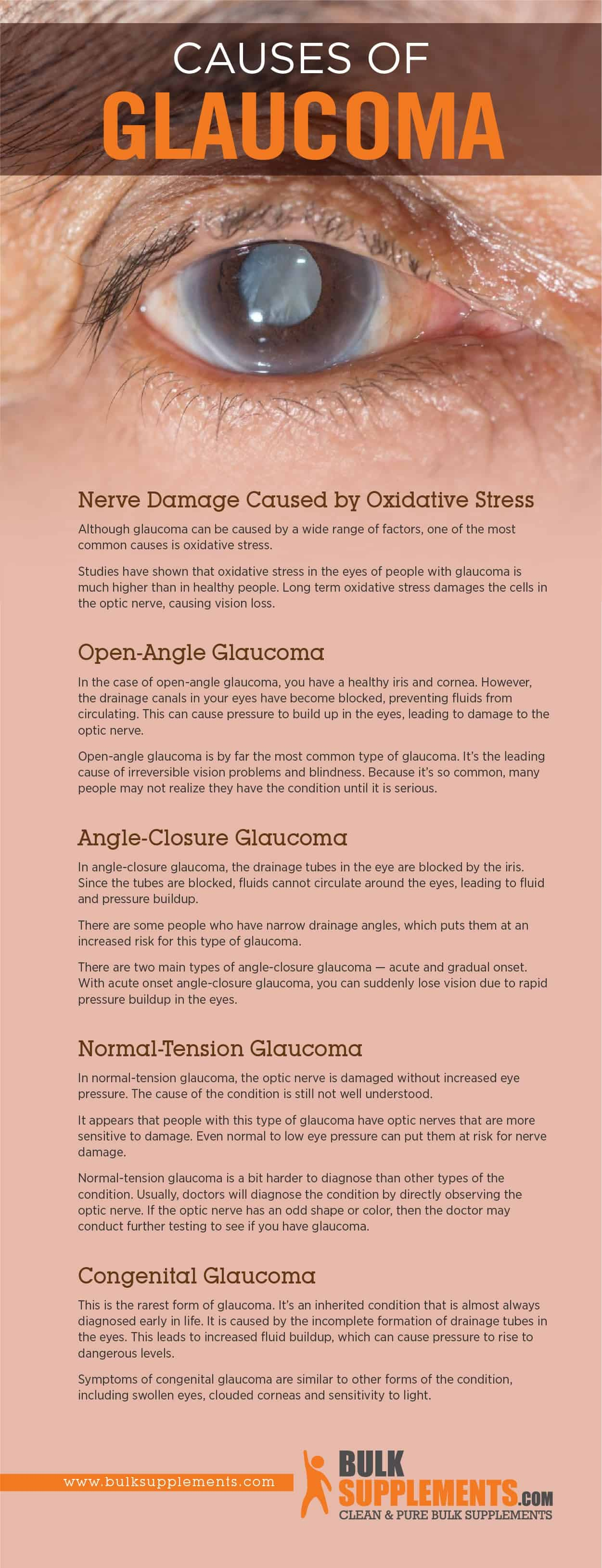 Causes of Glaucoma