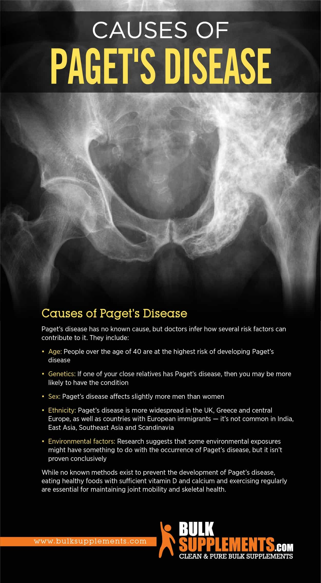 Causes of Paget's Disease