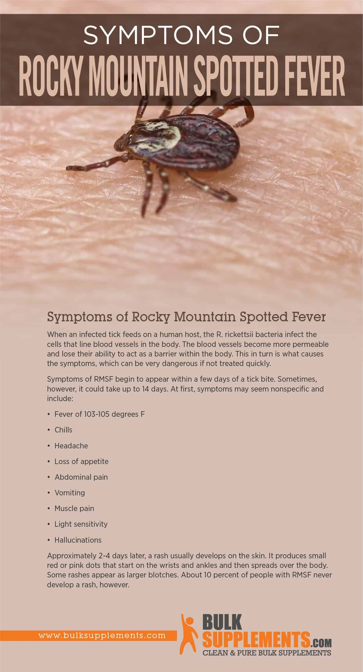 Symptoms of Rocky Mountain Spotted Fever