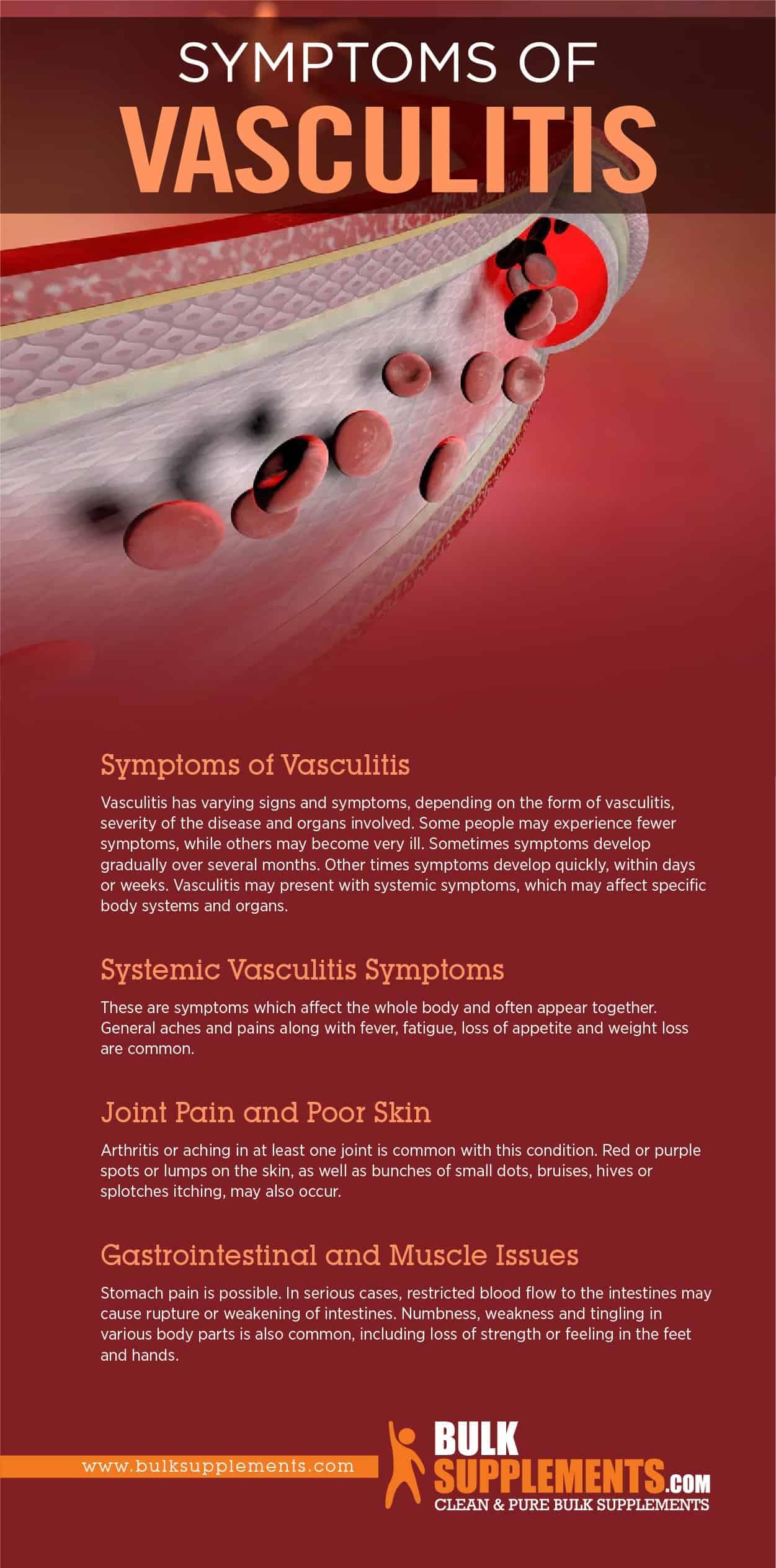 Symptoms of Vasculitis