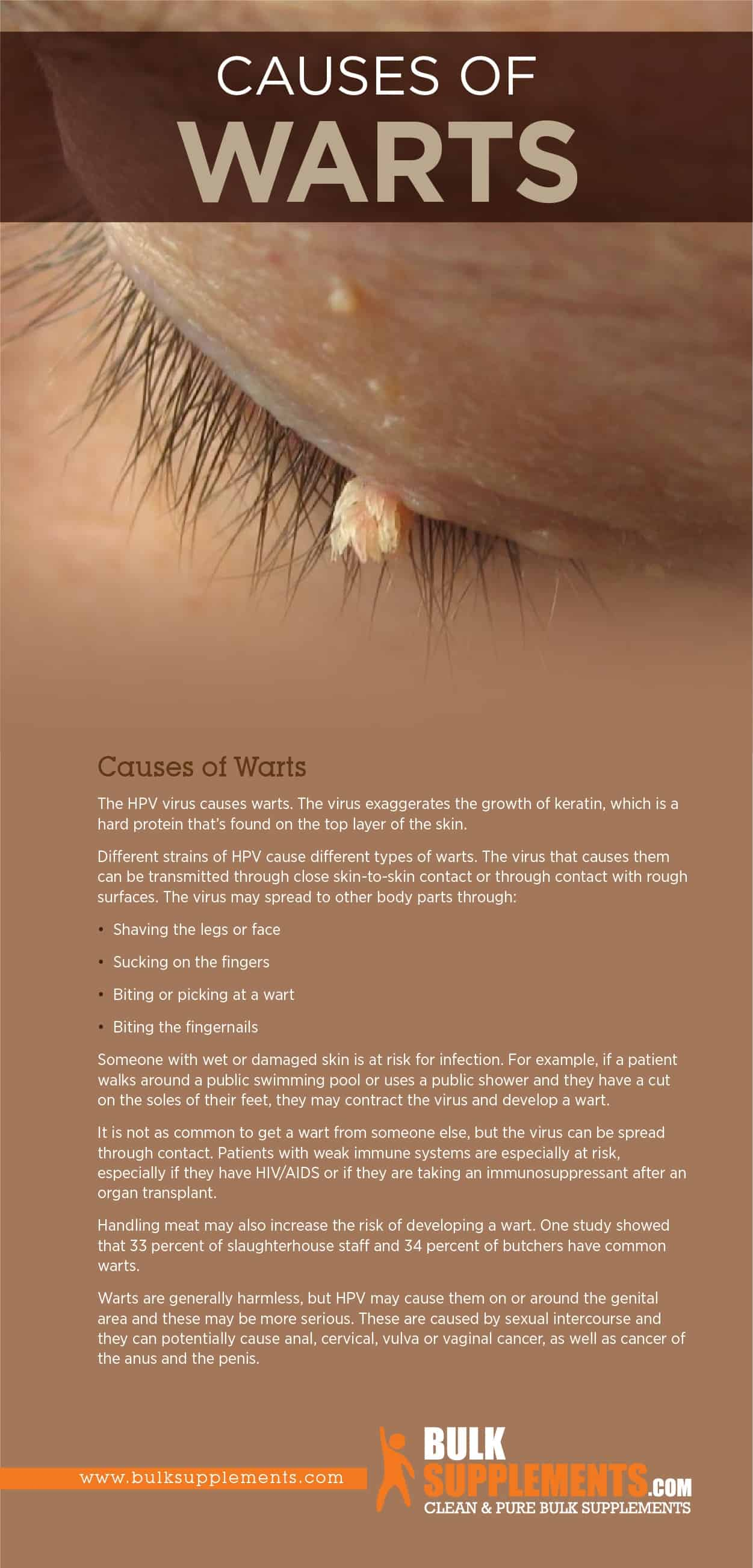 Causes of Warts