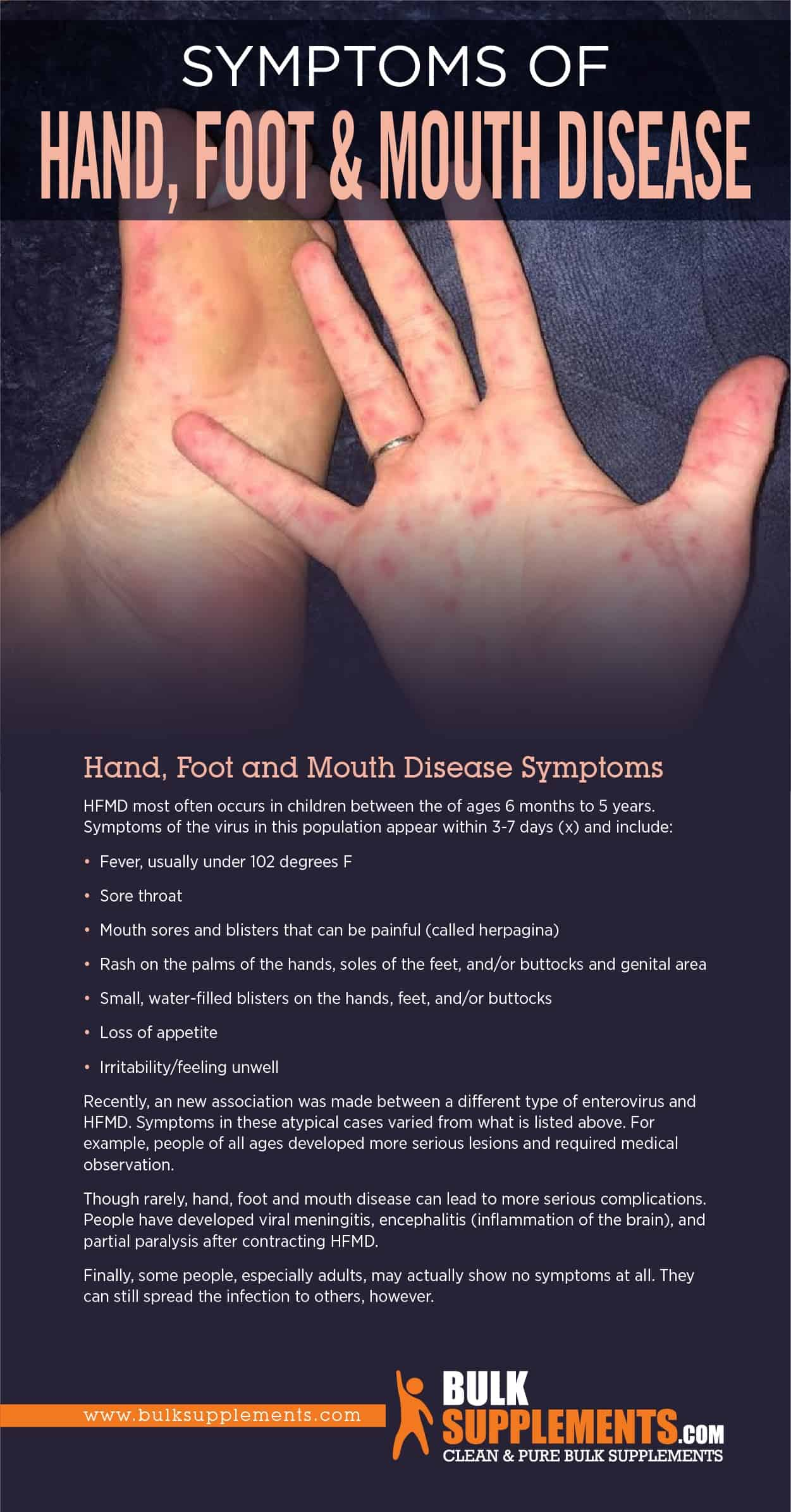 Symptoms of Hand, Foot & Mouth Disease