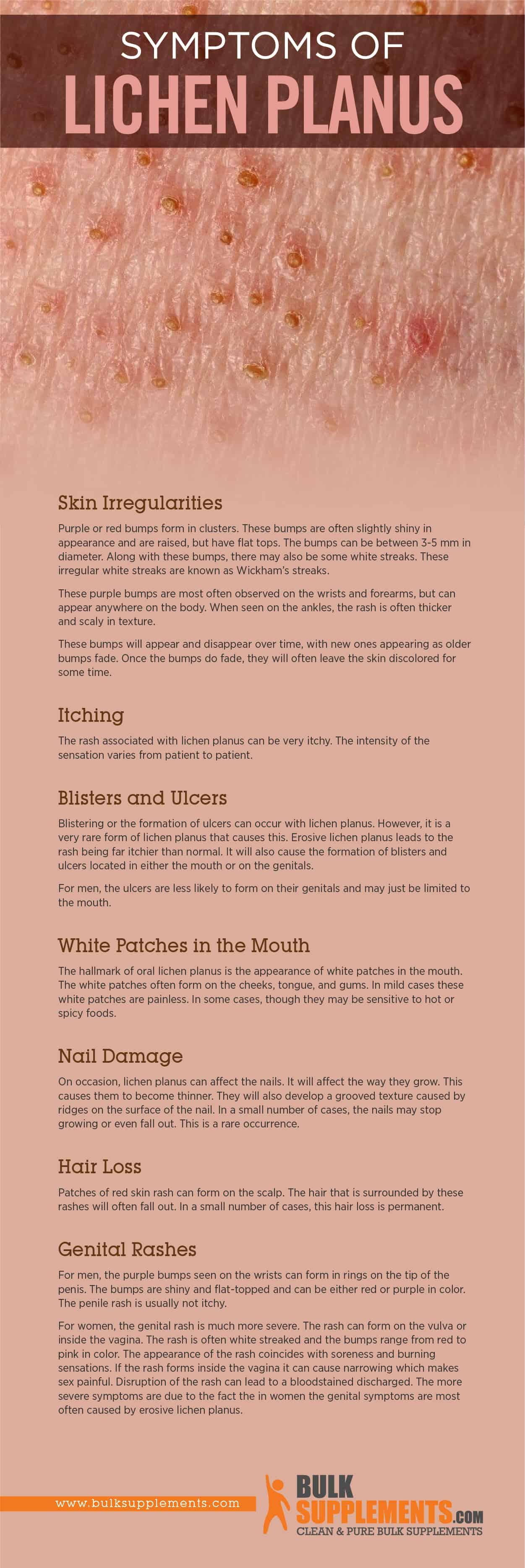 Lichen Planus Symptoms