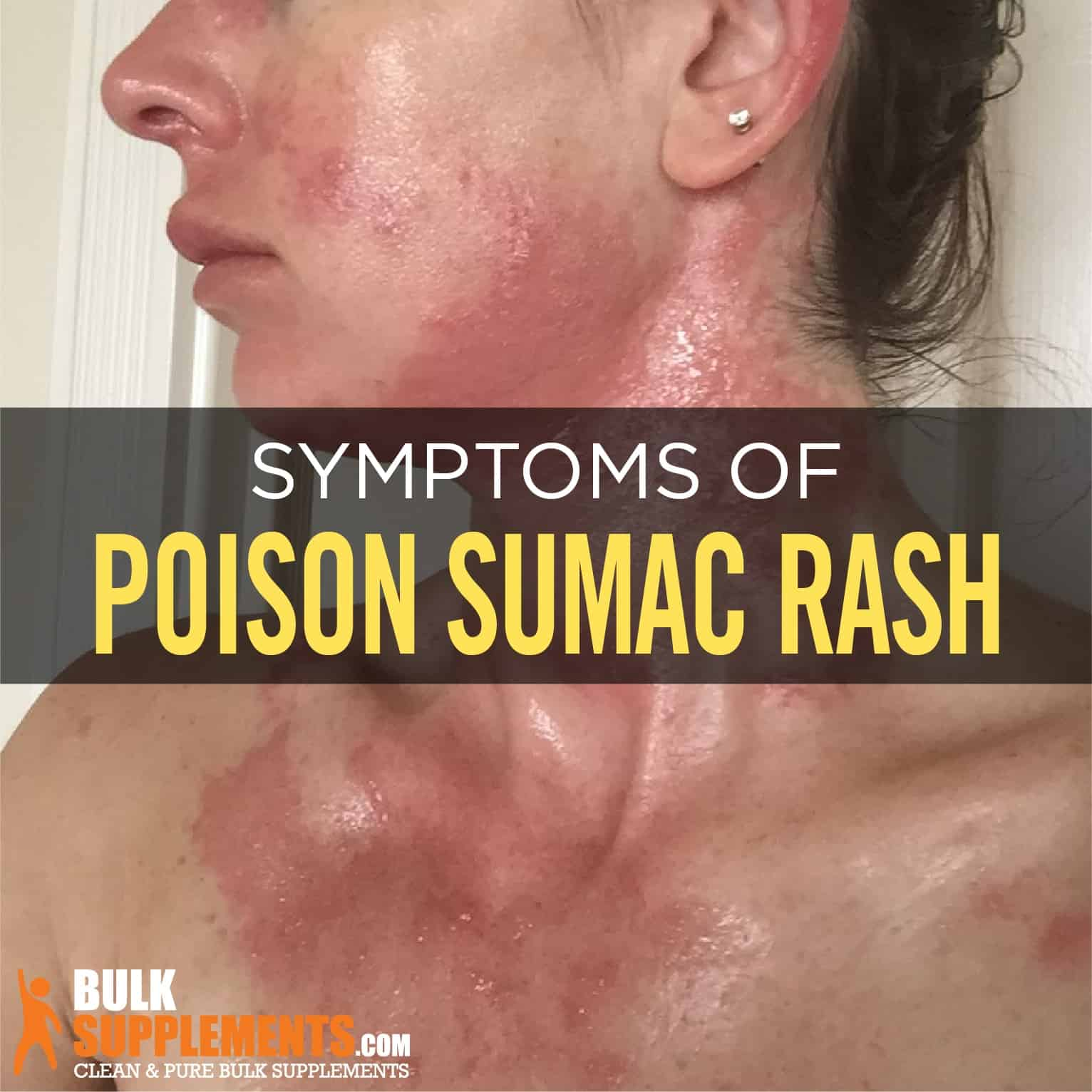 Poison Sumac Rash Characteristics Causes Treatment,Transplanting