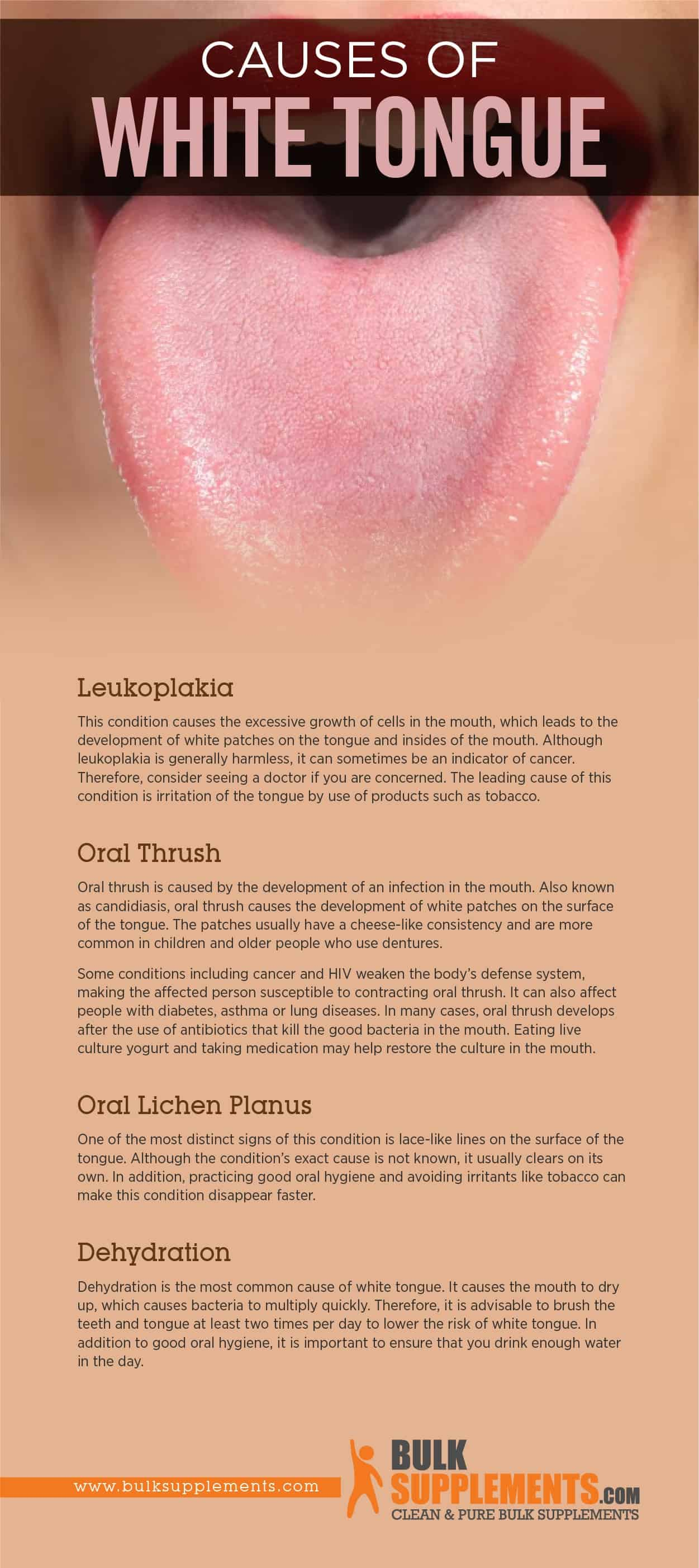 Causes of White Tongue