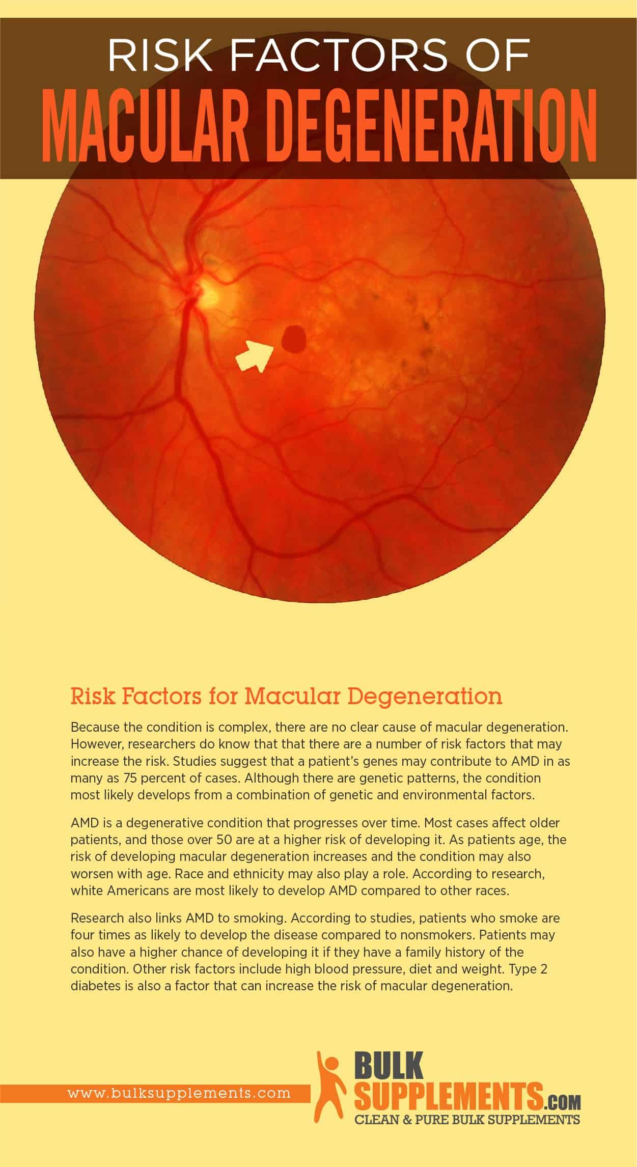 Risk Factors of Macular Degeneration