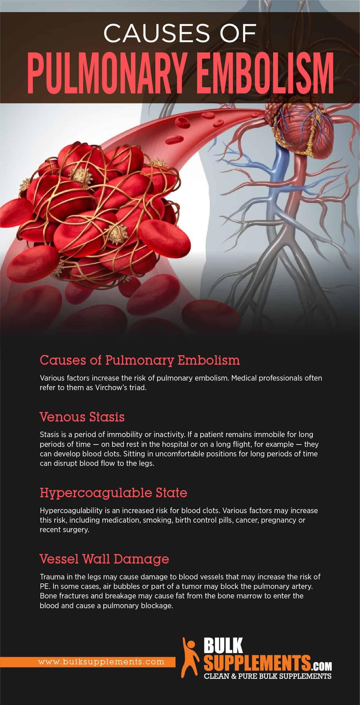 Causes of Pulmonary Embolism