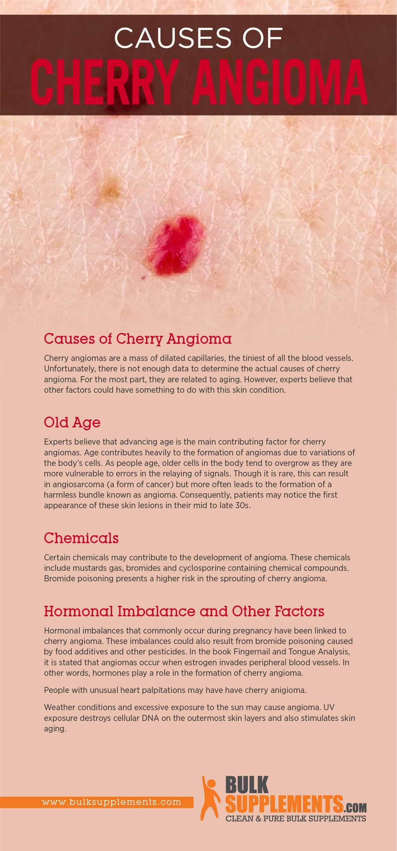 Causes of Cherry Angioma